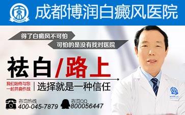 白癜风疾病反复发作怎么治