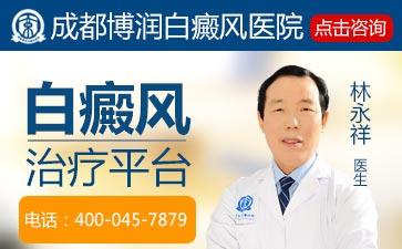 白癜风疾病都有哪些症状表现